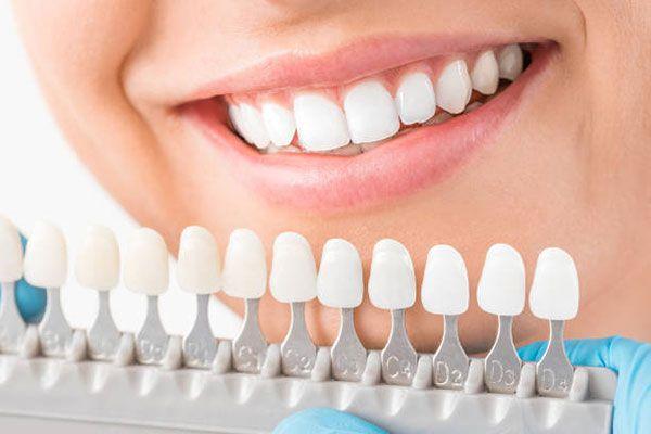 new-set-of-teeth.jpg (29.88 Kb)